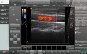 Stoßwelle mit Ultraschall, STORZ MEDICAL