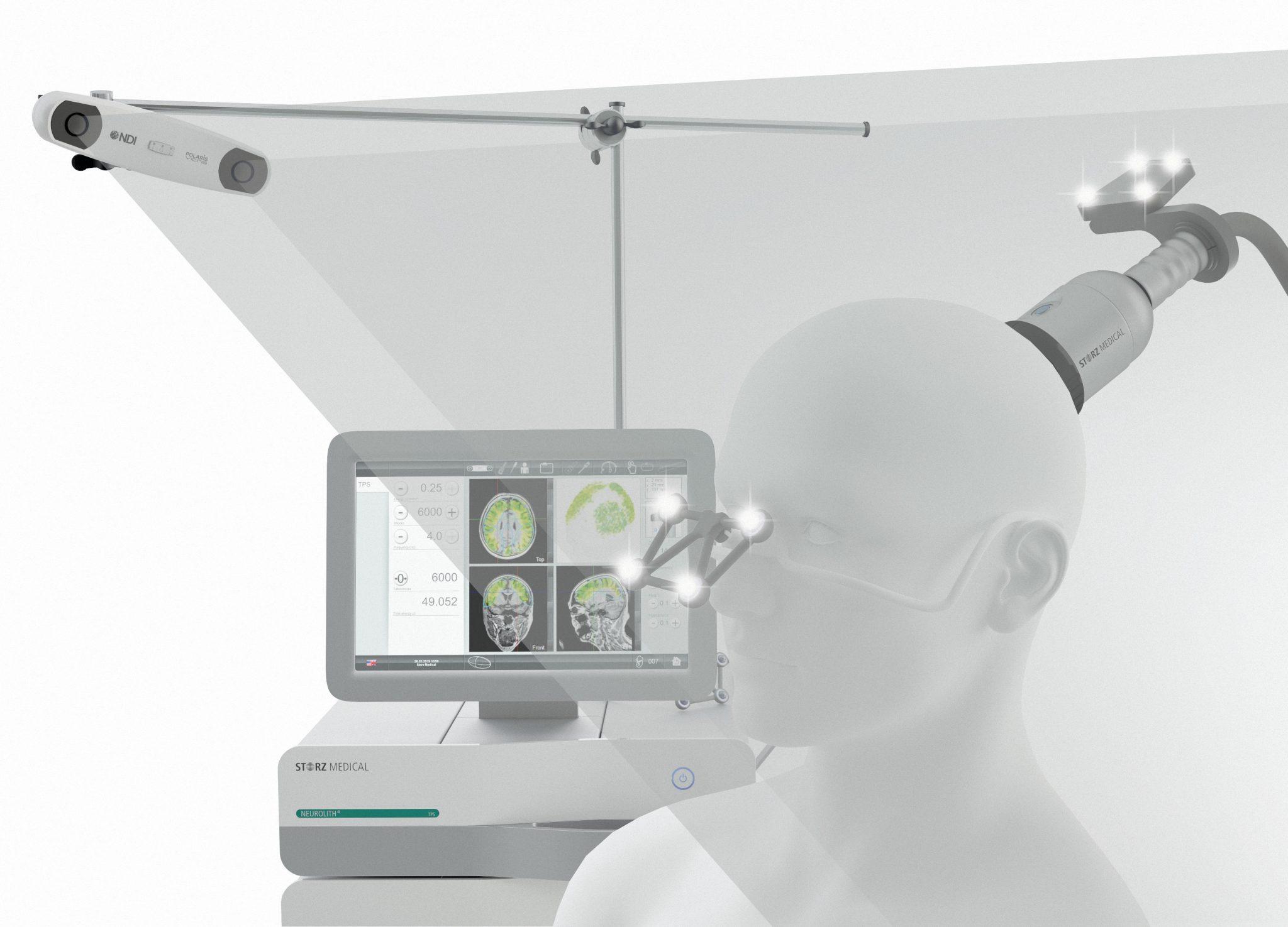 Neurolith TPS Alzheimer